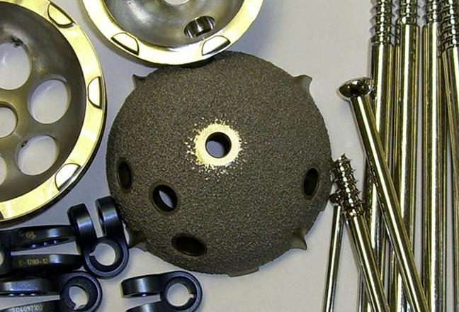 Prótesis de cadera: Cotilo y tornillo de fijación